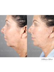 Neck Lift - Dr. Chakarin Plastic Surgery