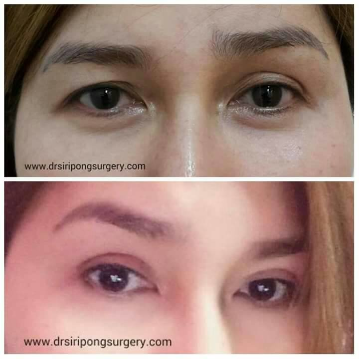 The Most Mon Cause Of Eye Bags Is A Loss Fatty Tissue Below Patient Can Remove With Surgery Or Without Known As Dermal