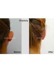Отопластика - Dr Siripong Surgery