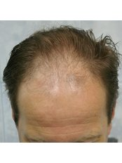 Hair Transplant - Global Health Travel
