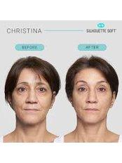 Силуэт-Лифт (Silhouette Lift™) - The Sib Clinic