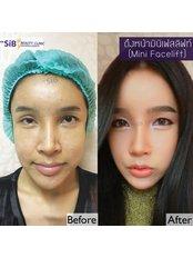 Мини-лифтинг лица - The Sib Clinic
