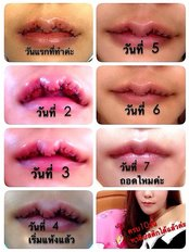 Lip Augmentation - Sompetch Aesthetic Clinic