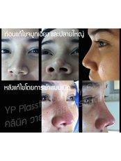 Rhinoplasty - YP Plastic Surgery Clinic