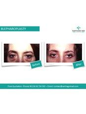 Blepharoplasty 2 Eyelids - Carthago Med