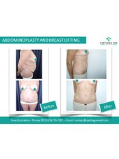 Abdominoplasty - Carthago Med