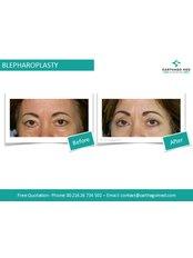 Blepharoplasty 4 Eyelids - Carthago Med