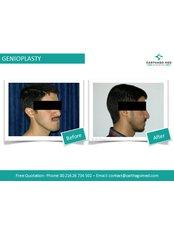 Genioplasty - Carthago Med