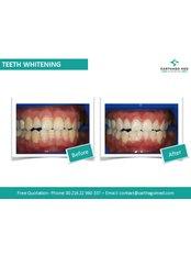 Zoom! Teeth Whitening - Carthago Med