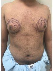 Gynecomastia - A Plus Aesthetic Clinic