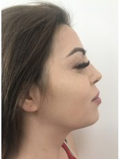 Nasal Tip Surgery - A Plus Aesthetic Clinic