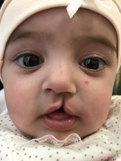Cleft Lip and Palate Treatment - A Plus Aesthetic Clinic