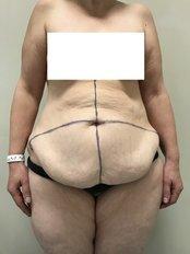 Lipoabdominoplasty - A Plus Aesthetic Clinic