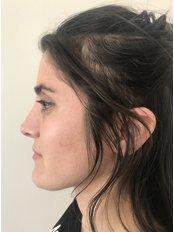 Open Rhinoplasty - A Plus Aesthetic Clinic