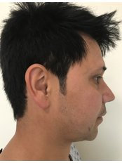 Chin Implant - A Plus Aesthetic Clinic