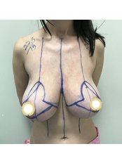 Breast Reduction - A Plus Aesthetic Clinic