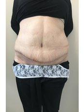 Full Abdominoplasty - A Plus Aesthetic Clinic
