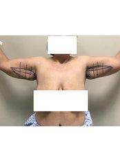 Arm Lift - A Plus Aesthetic Clinic