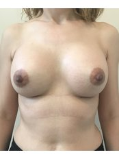 Breast Implants - A Plus Aesthetic Clinic