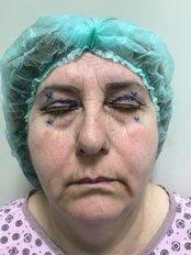 Eyelid Surgery - A Plus Aesthetic Clinic