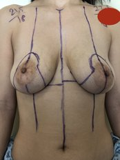 Breast Lift - A Plus Aesthetic Clinic