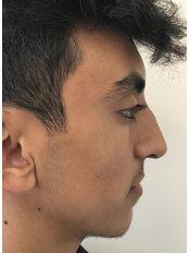 Rhinoplasty - A Plus Aesthetic Clinic