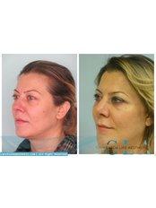 Facelift - Dr. Bahadır Çelik