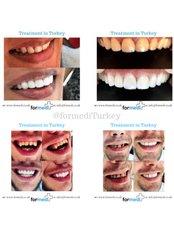 Dental Bridges - Formedi Clinic Turkey