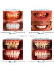Dental Crowns - Formedi Clinic Turkey