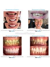 Veneers - Formedi Clinic Turkey