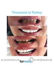 Porcelain Veneers - Formedi Clinic Turkey