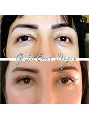 Blepharoplasty - Almond Eyes - Oculoplastic Surgery Center
