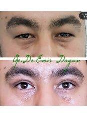 Asian (Double Eyelid) Blepharoplasty - Oculoplastic Surgery Center