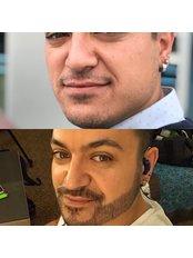 Beard Transplant - Saluss Medical Group