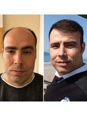 DHI - Direct Hair Implantation - Saluss Medical Group