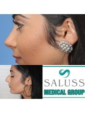 Closed Rhinoplasty - Saluss Medical Group