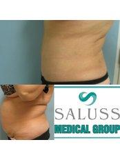 Tummy Tuck - Saluss Medical Group