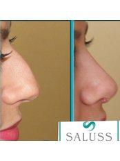 Open Rhinoplasty - Saluss Medical Group