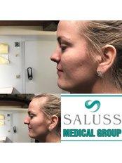 Nasal Tip Surgery - Saluss Medical Group