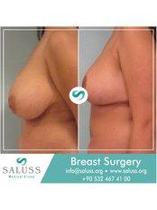 Breast Lift - Saluss Medical Group