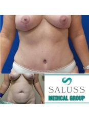 Mommy Makeover - Saluss Medical Group