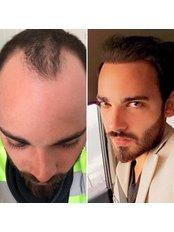 Sapphire FUE Hair Transplant - Saluss Medical Group