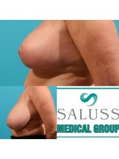 Breast Reduction - Saluss Medical Group