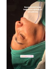 Open Rhinoplasty - Dr.Ümit Hardal Central Hospital