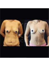 Tummy Tuck - ClinicPlast