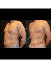 VASER Lipo™ Liposuction - ClinicPlast