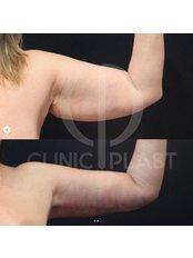 Arm Lift - ClinicPlast