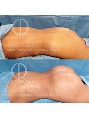 Fat Transfer - BBL - ClinicPlast