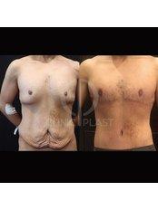 Gynecomastia - ClinicPlast