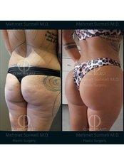 Butt Implants - ClinicPlast